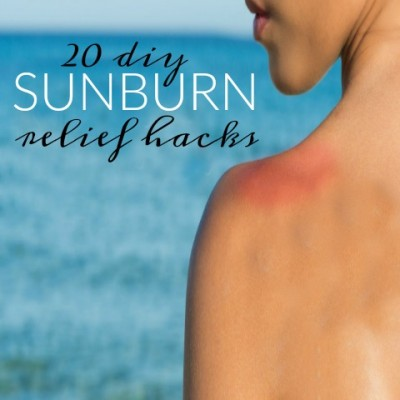 20 DIY Sunburn Relief Hacks