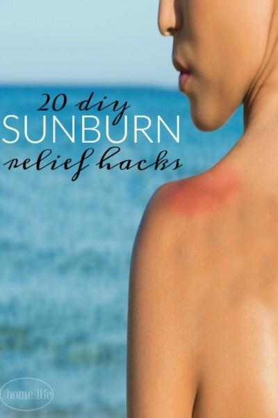 20 DIY Sunburn Relief Hacks